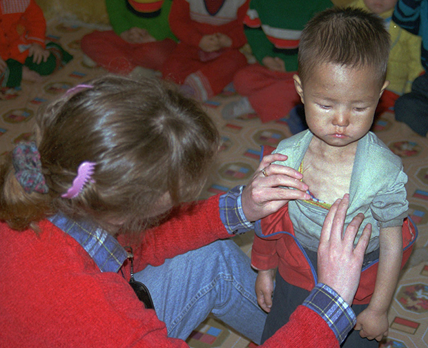 유니세프 종사자가 영양실조가 심각한 북한 어린이를 살펴보고 있다.