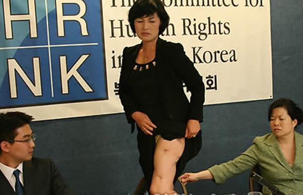 2009년 탈북여성 2명이 워싱턴 DC 내셔널프레스센터에서 미국의 비영리단체인 '북한인권위원회'가 주최한 북한여성 인신매매 인권보고서 기자회견장에서 북한을 탈출해 한국으로 오기 전까지 겪었던 형언하기 어려운 참혹한 고통을 눈물로 생생하게 증언해 참석자들을 울렸다. 무산광산 선전대 여배우 출신인 방미선 씨가 기자회견 중 강제수용소에서 맞은 허벅지 상처를 보여주고 있다.
