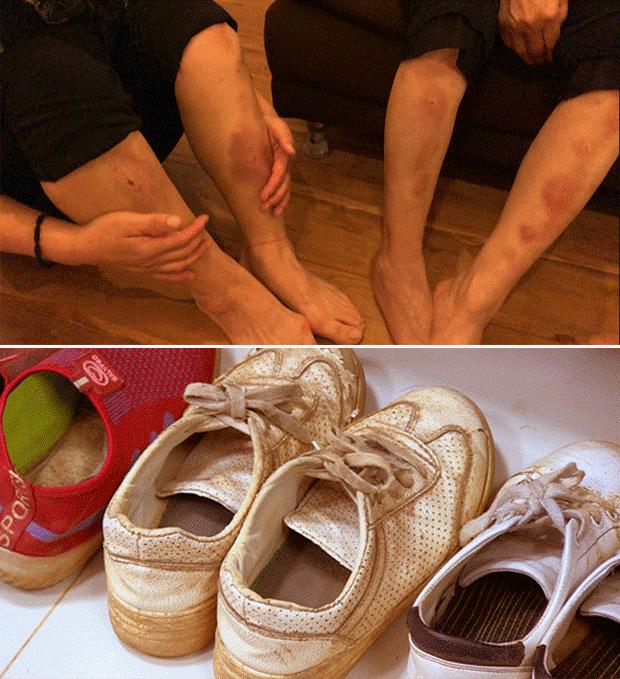 멍투성이인 다리, 낡고 해어진 신발이 험난했던 탈북 여정을 보여주고 있다.