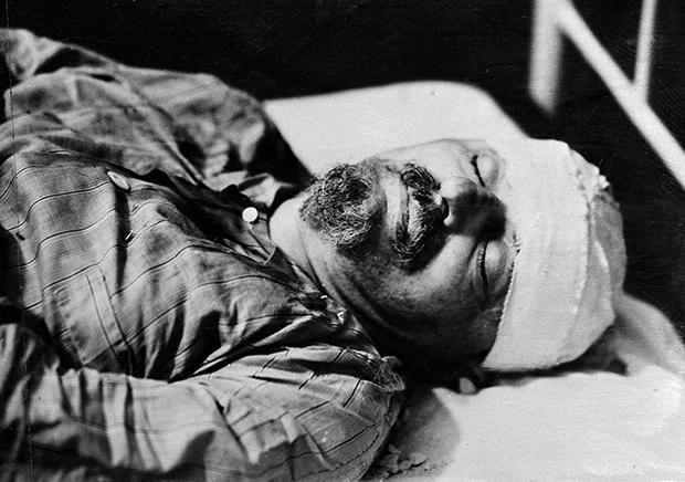 1940년 8월 멕시코시티에서 스페인 출신 소련 공작원 메르카도르에 의해 암살당한 트로츠키의 모습.